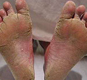 Removing Athlete S Feet Fungus From Shoes