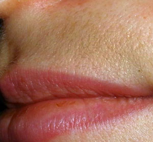 dark upper lip Home Remedies For Dark Upper Lip Shadow By Dr.Khurram Mushir